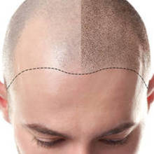 Mesotherapy for hair loss: Does it help hair regrowth?