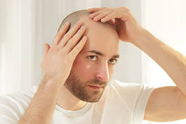 10 Reasons for Hair Loss