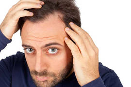 Hair transplant: Questions and answers