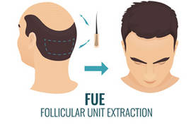 FUE treatment: what are its side effects after a hair transplant?