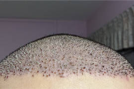 Scabs after your hair transplant