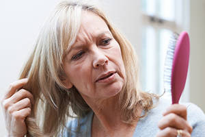 Hair Loss in Menopause