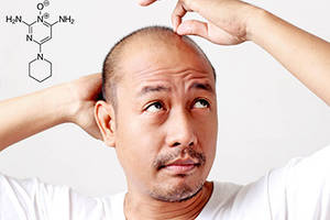 Does Minoxidil regrow hair and stop hair loss?