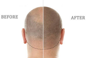 Scalp micropigmentation: an alternative solution for alopecia