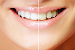 Teeth whitening in Turkey
