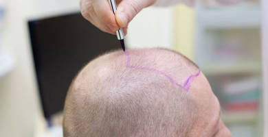 Hair transplant in Turkey vs UK: what are the differences?