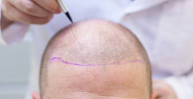 What does survival of follicles depend on?