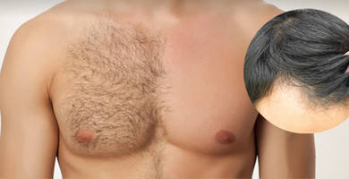 Body hair transplant to head