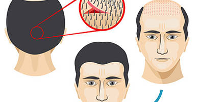 FUT-Methode in der Haartransplantation