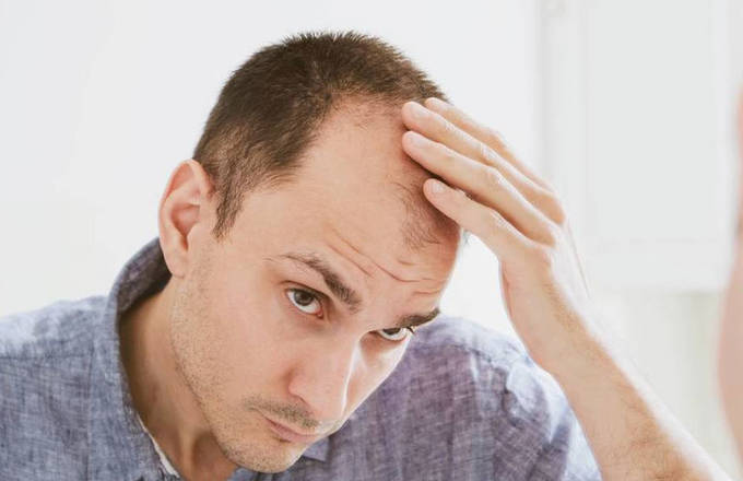 Prosthetic hair or hair transplant: which one is better?