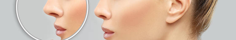 photo-services/rhinoplasty2-header-xs.jpg