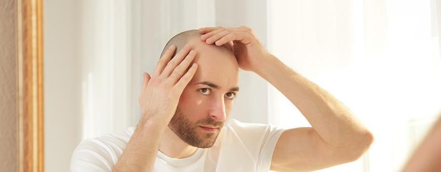 10 اسباب لتساقط الشعر