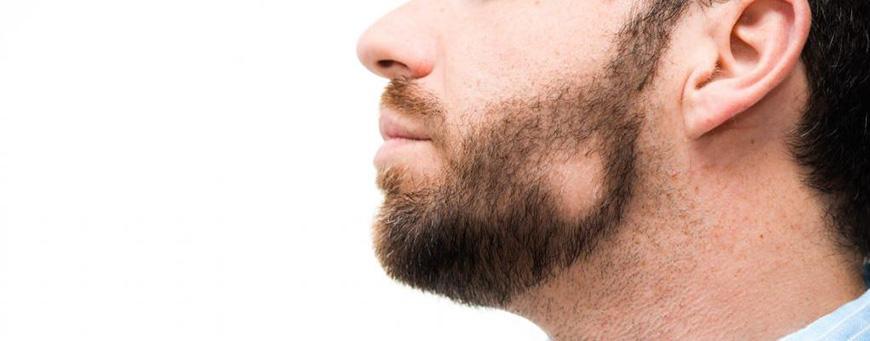 Pérdida de cabello relacionada con la autoinmunidad