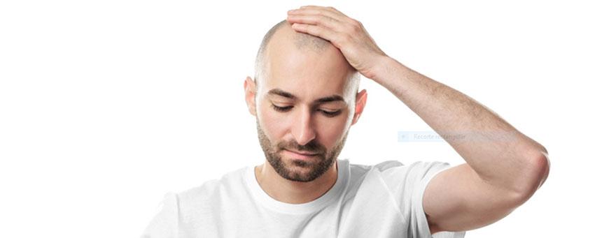 alopecia cicatrizal, causas, síntomas y tratamiento