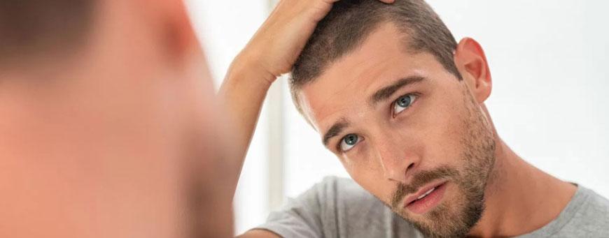 ¿cómo se si tengo alopecia difusa?