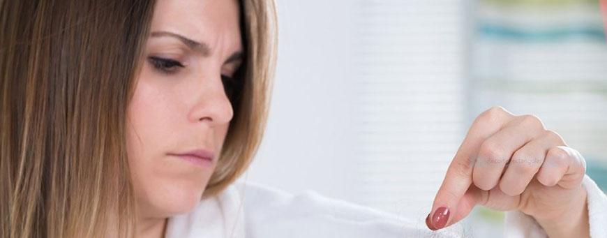 alopecia frontal fibrosante en mujeres