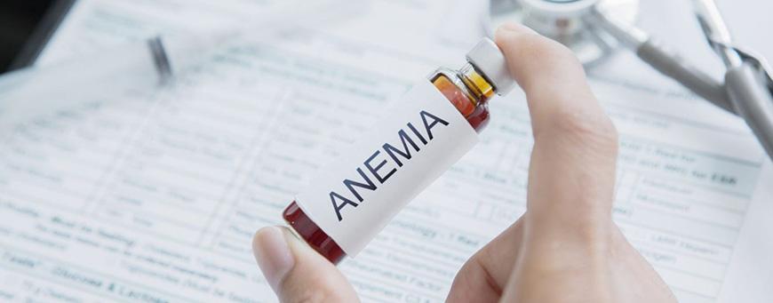 anemia y caída del cabello