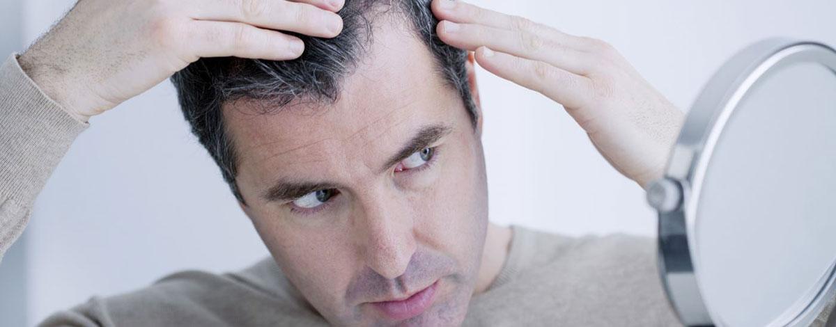 ¿Qué es efluvio telógeno crónico?