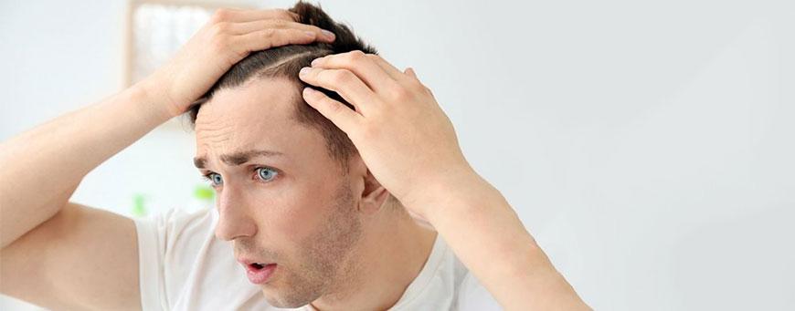relación entre hipotiroidismo y caída del cabello