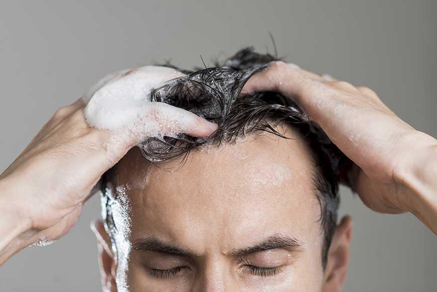 lavar el cabello después de un injerto capilar