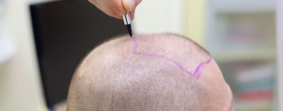 linea de pelo trasplante capilar