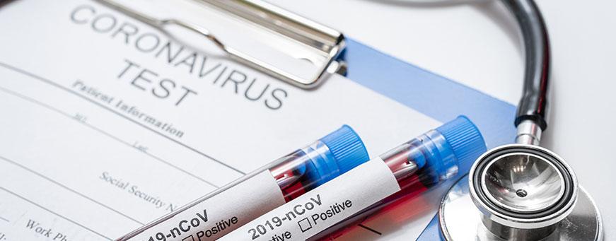 relación entre coronavirus y alopecia