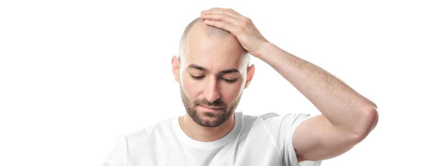 ¿Se puede trasplantar el cabello de otra persona?