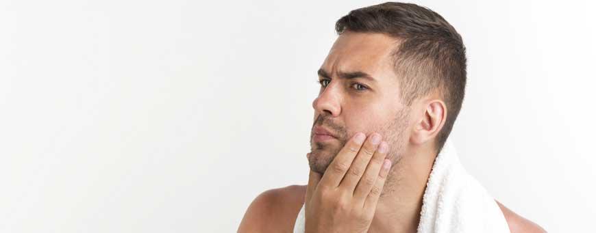 calvas en la barba