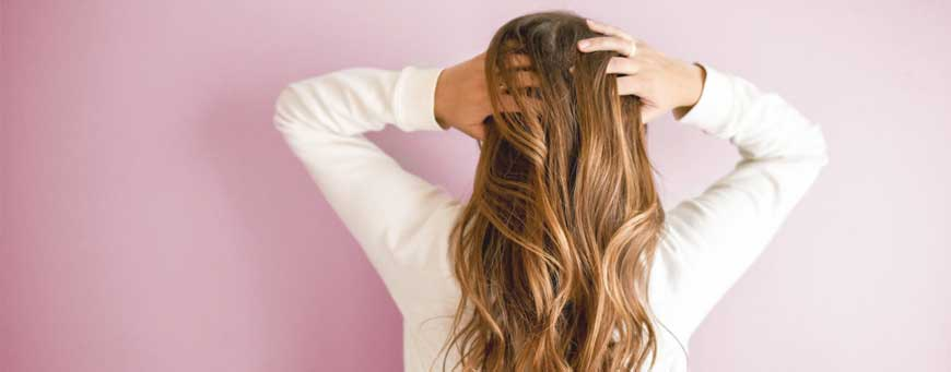 lupus and alopecia