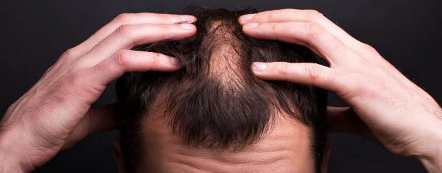 trasplante de pelo con psoriasis