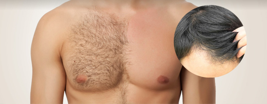 استخدام شعر الجسم لزراعة شعر الرأس