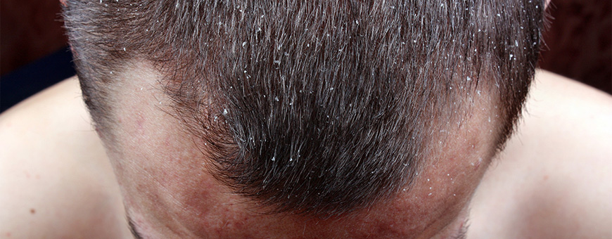 Dandruff And Hair Loss Causes And Treatment Clinicana