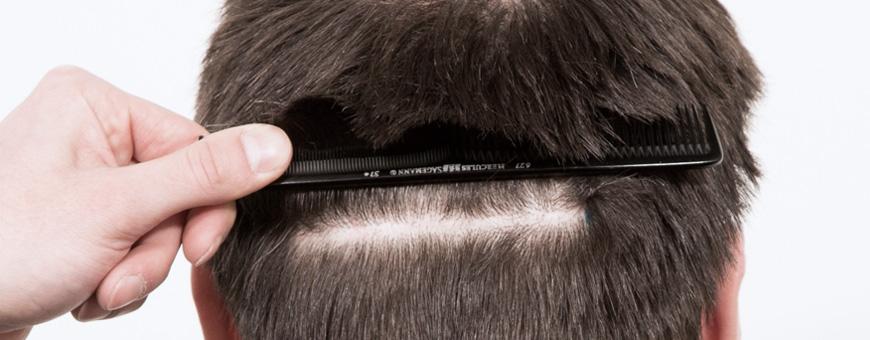 اين تقع المنطقة المانحة في زراعة الشعر