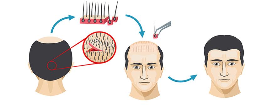 ما هي تقنية زراعة الشعر بطريقة الشريحة