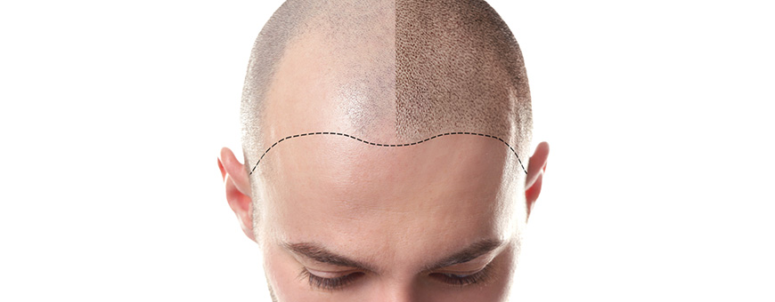 Mesotherapy For Hair Loss Treatment And Side Effects