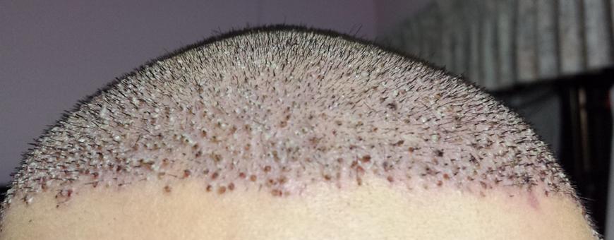 القشور بعد زراعة الشعر