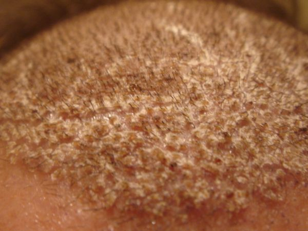 removal of crust or scabs after hair transplant
