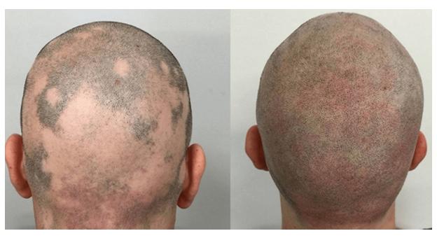 مرض الثعلبة وصبغ الرأس المجهري
