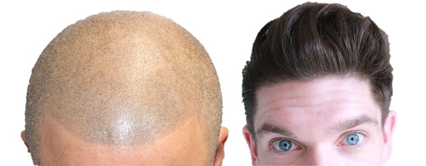 زراعة الشعر وصبغ الرأس المجهري