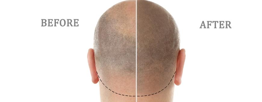 ما هي تقنية صبع فروة الرأس المجهري