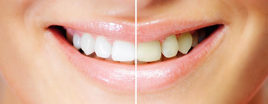 معلومات عن تبييض الأسنان