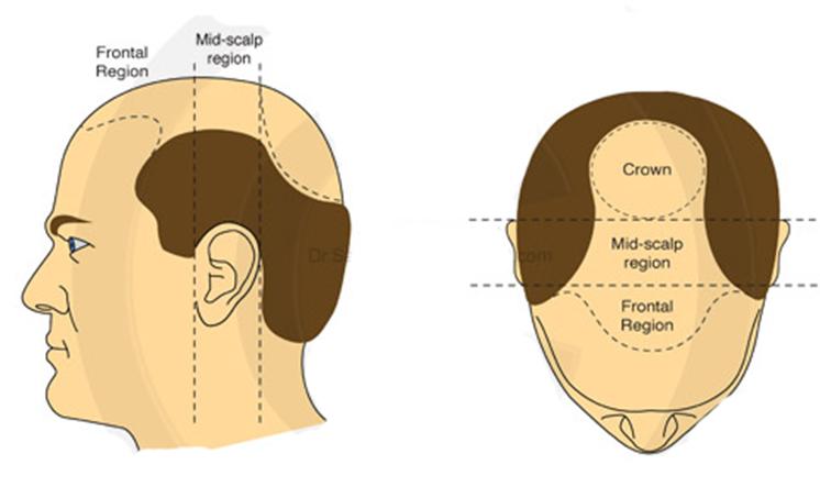 اين تقع منطقة التاج في زراعة الشعر