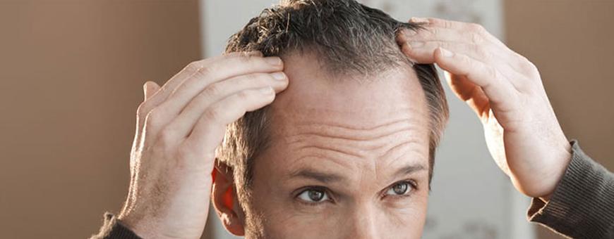 زراعة الشعر في منطقة التاج