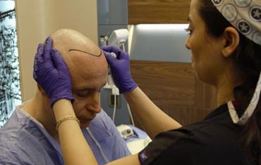 Лечение облысения, нанесение первой линии волос