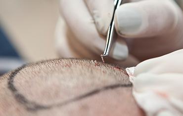 Пересадка волос методом фолликулярного извлечения волоса FUE