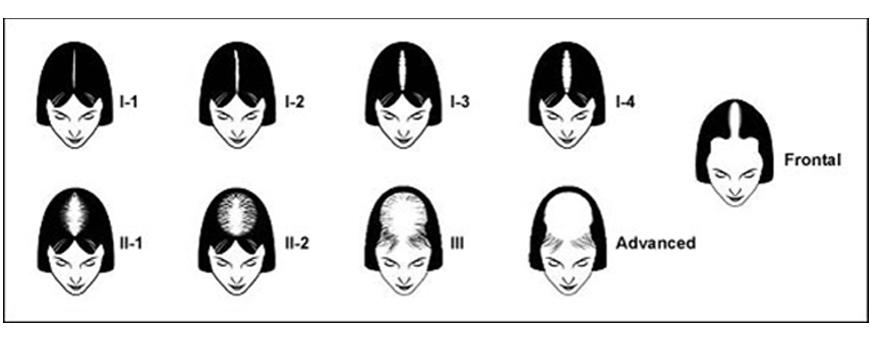 Лечение женского облысения, трансплантация волос у женщин в Clinicana - Турция