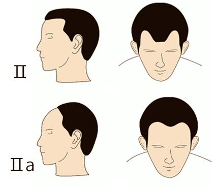 tipos de entradas de pelo